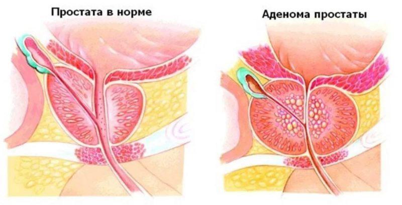 Нормальный объем предстательной железы в 40 лет