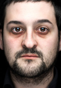 Появление темных кругов под глазами: причины у мужчин