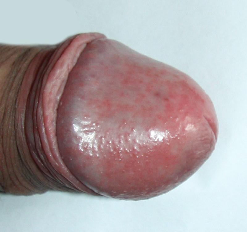 Воспаление головки пениса