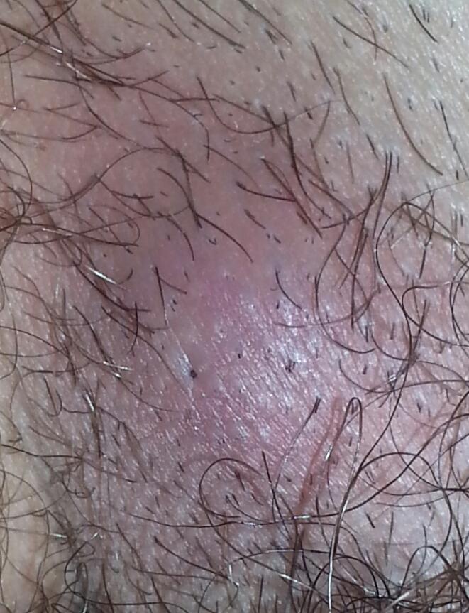 Шишка в паху у мужчин провоцирующие факторы и методы лечения