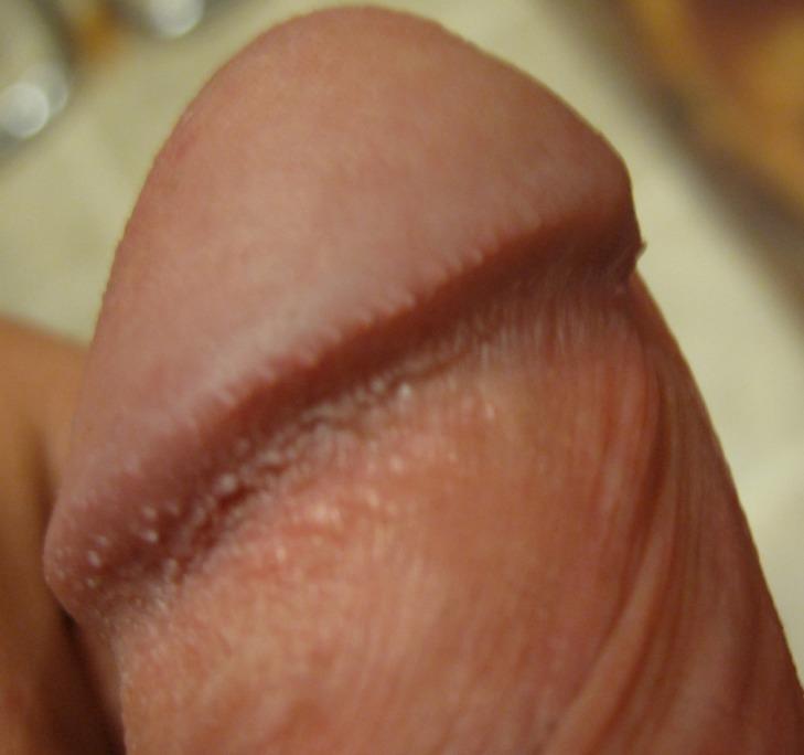 Мелкие белые пупырышки