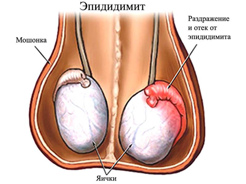 Опухоль образуется в результате эпидидимита