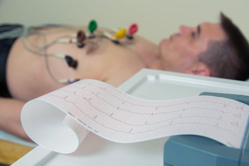 Диагностика на основе электрокардиограммы