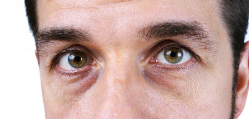 Темные круги под глазами - признак нездорового образа жизни или болезни