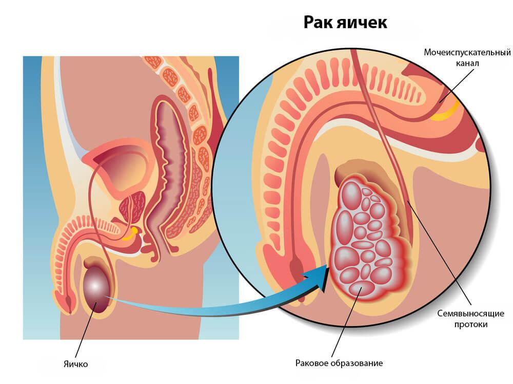 Почему одно яичко больше другого у мужчин: причины и лечение