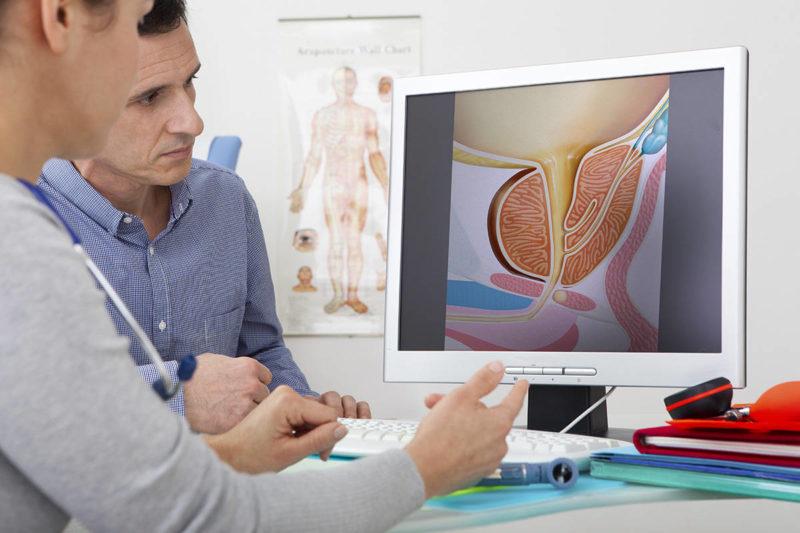 Прием у уролога и определение метода лечения